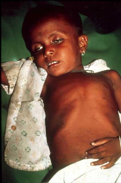 Slide 1 - Acute Diarrhoeal Diseases - Clinical Features ...